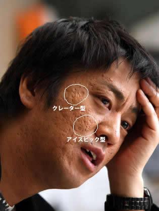 $ニキビ跡とクレーターで凸凹の顔、皮膚が死滅してると言われた 私がつるんと卵肌になった方法!